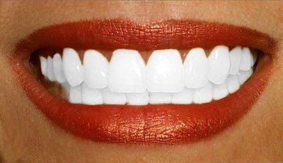 comment avoir les dents plus blanches de sky beaute
