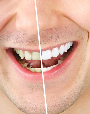 conseils soins de la bouche blanchir ses dents conseils en tout genre r serv e aux filles. Black Bedroom Furniture Sets. Home Design Ideas