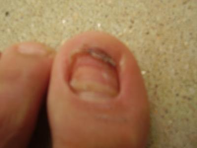 Mon ongle apr s un petit incident xd le skyblog de kiratsuke - Coupe des ongles de pieds ...