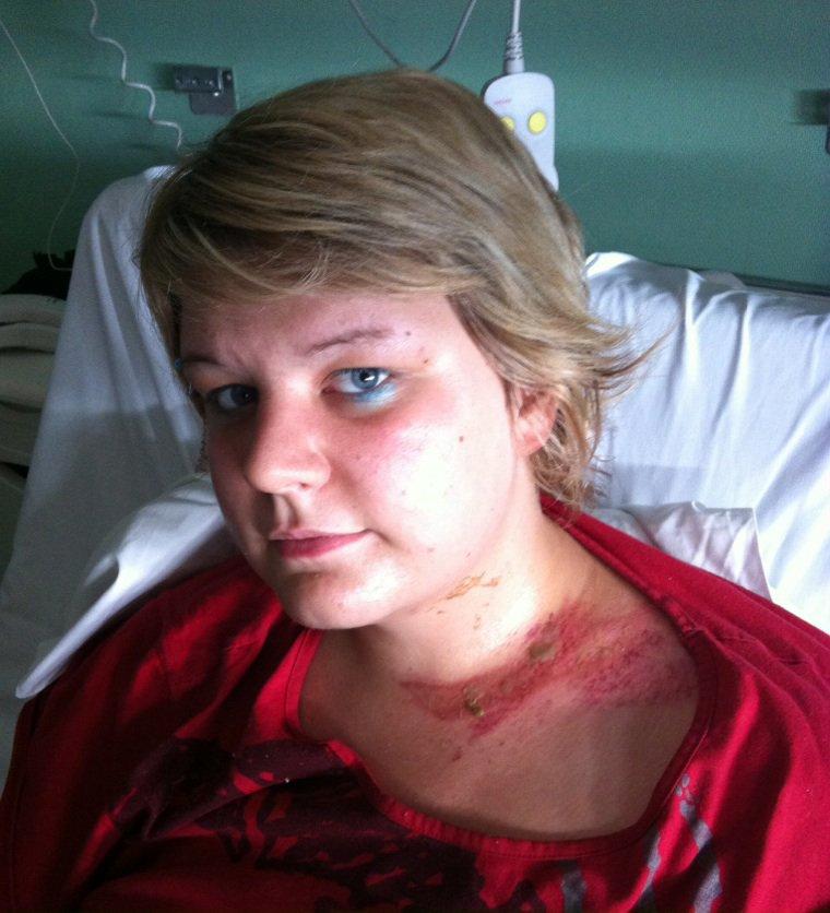 Blog de ma sleeve gastrectomie page 2 ma sleeve - Combien de temps pour porter plainte pour coup et blessure ...
