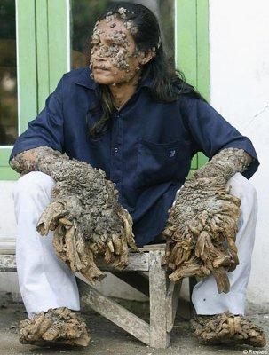 Dede, un pêcheur d'Indonésie, vivait tranquillement dans son village ...