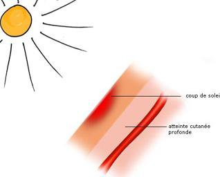 Blog de cancer de la peau mik cancer de la peau - Peau qui brule comme un coup de soleil ...