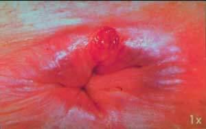 Blog de loudjedisalim - Page 4 - chirurgie générale