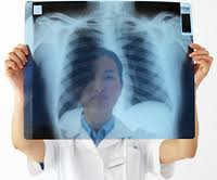 comment devenir pneumologue