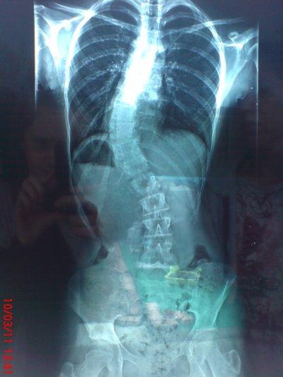 Léloignement de la hernie intervertébrale dans les cliniques moskvy