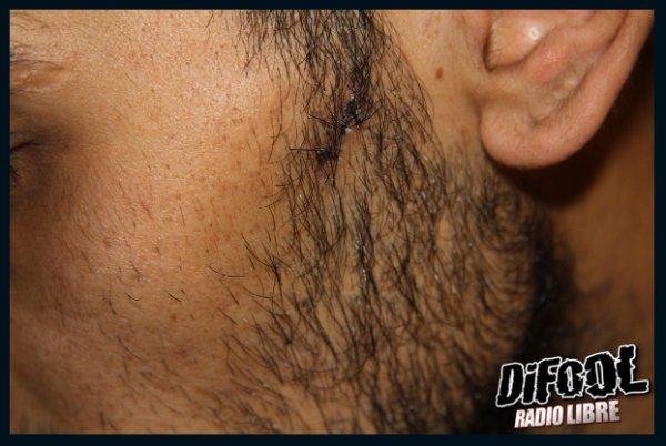 Le probl�me m�dical de la soir�e : les points de sutures de Karim
