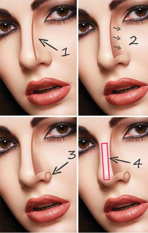 Comment affiner un nez trop gros trop large