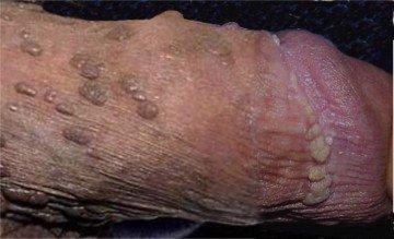 Virus du papillome humain oral