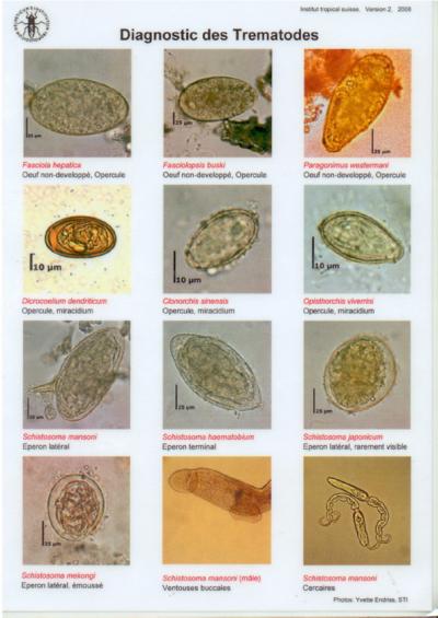 Test de dianostique rapide des vers intestinaux dans les - Vers dans les cerises ...