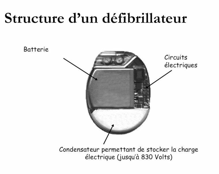 qu 39 est ce qu 39 un d fibrillateur cardiaque implant tpe d fibrillateur cardiaque implant. Black Bedroom Furniture Sets. Home Design Ideas