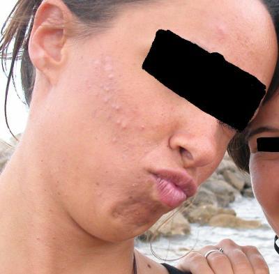 L' éTaT AcTuellE De Ma PeaU - roaccutane-girl