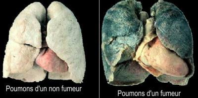 le cancer du poumon le cancer du poumon. Black Bedroom Furniture Sets. Home Design Ideas
