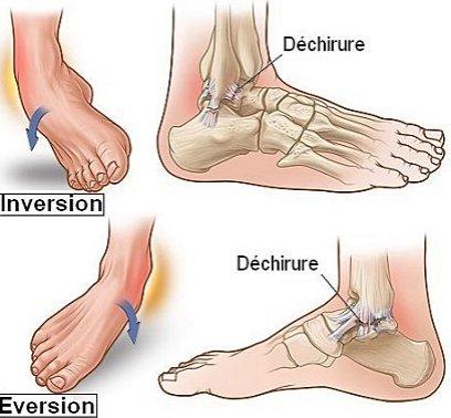 Entorse cheville torturaievoyage for Douleur interieur du pied