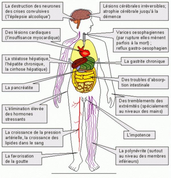 Le traitement contre lalcoolisme selon la méthode dovjenko à
