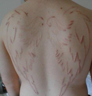 scarification piercing tatouage scarification implant. Black Bedroom Furniture Sets. Home Design Ideas