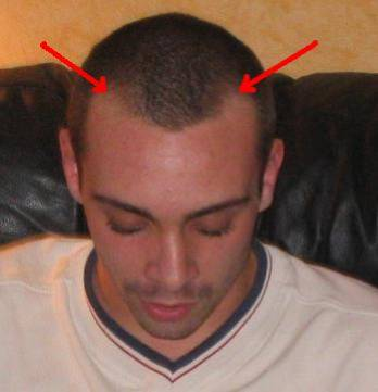 Calvitie mickado91 skyblog for Perte de cheveux homme