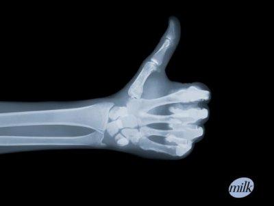 Le radiologue blog de bypass59 - Cabinet radiologie belleville sur saone ...
