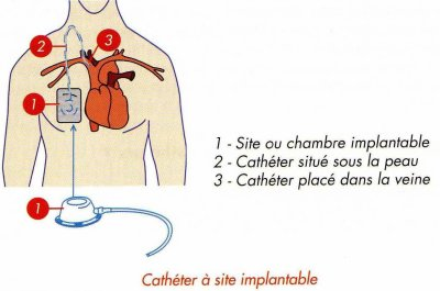Quca cath ter et chambre implantable la vie de mlle j - Infection chambre implantable ...