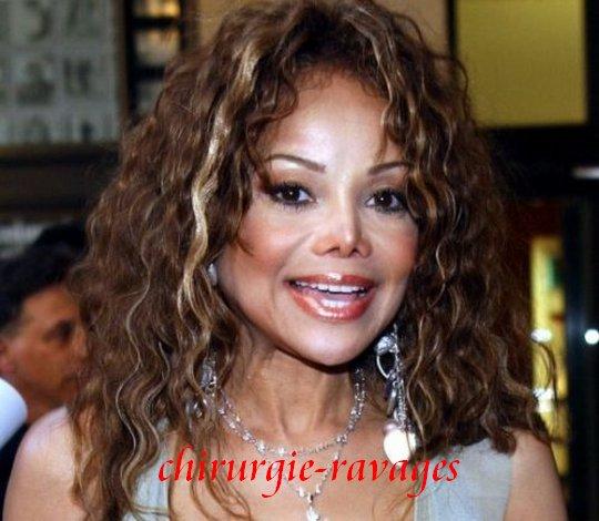 Janet Jackson chirurgie esthétique