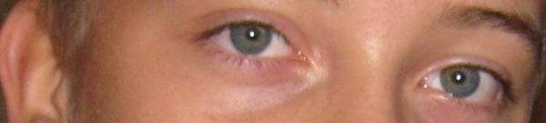 Tr�s beau yeux