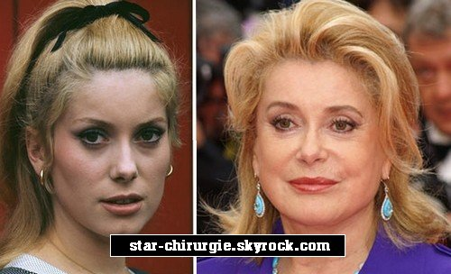 la chirurgie esth tique des stars chirurgie de catherine deneuve par actu catherine. Black Bedroom Furniture Sets. Home Design Ideas