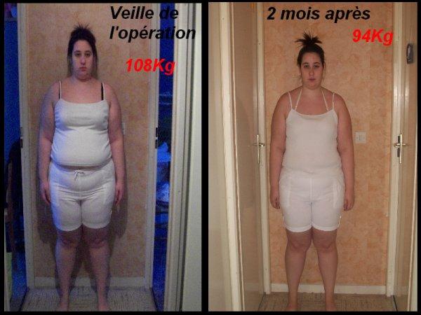 Photos Avant Et 2 Mois Apr 232 S Sleeve Gastrectomie Quot Une Nouvelle Vie